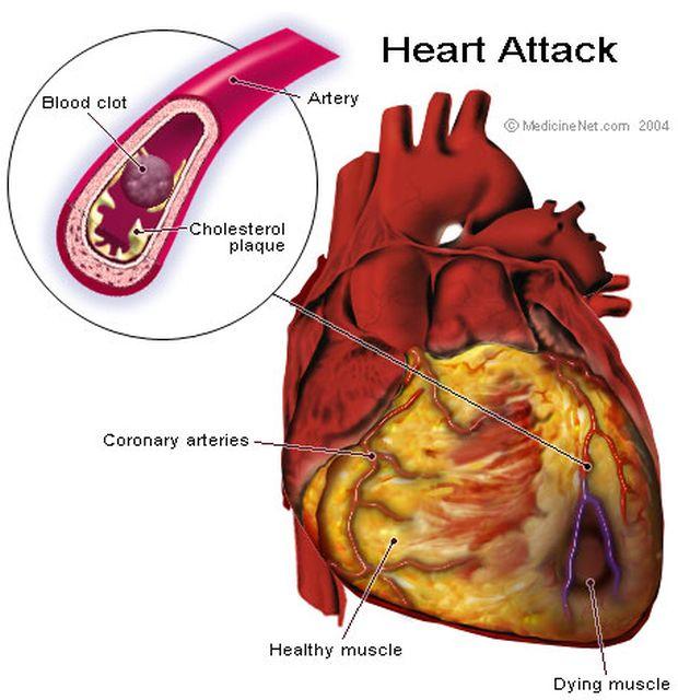 srčani-udar