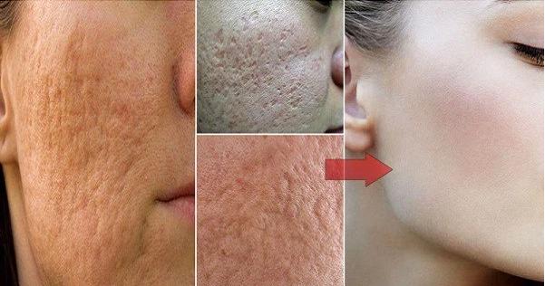 kako ukloniti pore na licu