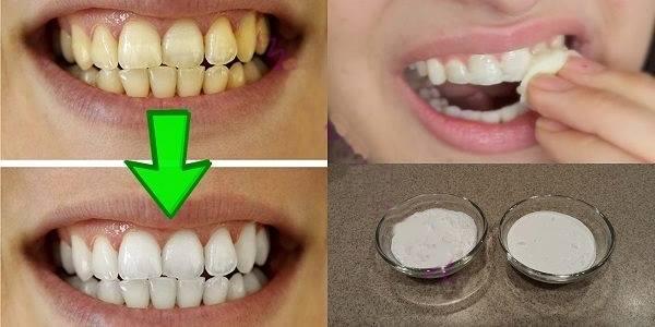 Lijepi zubi