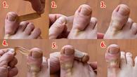 rjesnje za urasle nokte