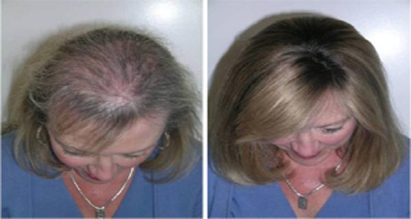 Spasite Svoju Kosu Obrve I Trepavice Uz Pomoc Ovog Ulja Bonita Najbolji Recepti Na Jednom Mjestu